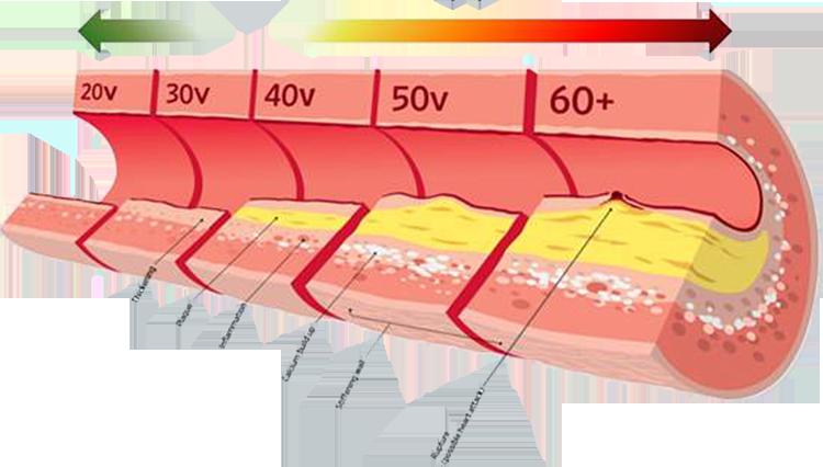 verisuonikuva